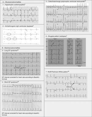 Electrocardiograms illustrating some structural and electrical cardiac abnormalities associated with sudden cardiac death.