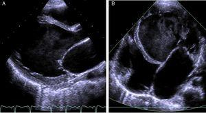(A) Transthoracic echocardiogram in long-axis parasternal view showing prominent trabeculations separated by deep recesses in the left ventricular lateral wall; (B) transthoracic echocardiogram in apical 4-chamber view showing left ventricular lateral wall and apical trabeculation.