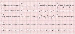 ECG showing sinus rhythm, heart rate 67 bpm, first-degree atrioventricular block, low voltage in frontal leads and complete left bundle branch block.