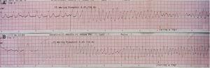 Polymorphic ventricular tachycardia (PVT) triggered by ventricular pacing (A)&#59; short-coupled (290 ms) PVT (B).