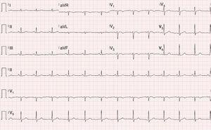 Electrocardiogram showing sinus rhythm at 76 bpm, with T-wave inversion in V1-V3.