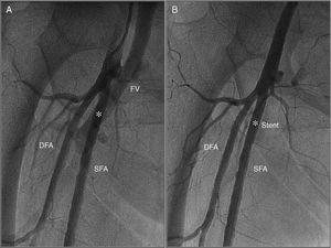 (A) Angiography obtained from the contralateral femoral artery (left) revealing a high-output arteriovenous fistula between the right superficial femoral artery and femoral vein (white asterisk); (B) angiography after implantation of a 26 mm×4.5 mm PK-Papyrus covered coronary stent (white asterisk) revealing complete sealing of the AV fistula. DFA: deep femoral artery; FV: femoral vein; SFA: superficial femoral artery.