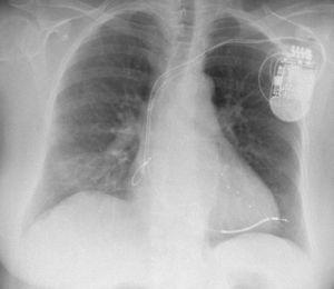 Chest radiography: progression of the right ventricular lead beyond the cardiac silhouette.