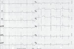Electrocardiogram after syncope showing atrial flutter with signs of pacemaker malfunction (undersensing and loss of ventricular capture).