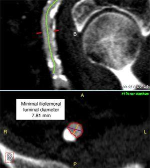 Assessment of minimal iliofemoral luminal diameter from MDCT imaging.