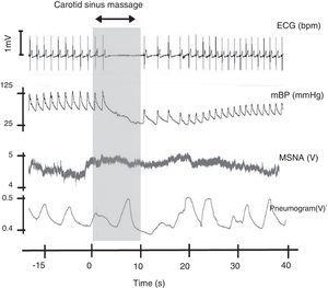 Carotid sinus massage. This figure shows the relation between cardiovascular variables, ventilation and muscle sympathetic nerve activity on sinus massage in a healthy subject. ECG: electrocardiogram&#59; mBP: mean blood pressure&#59; MSNA: muscle sympathetic nerve activity. Rocha and Laranjo, unpublished data.