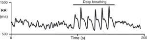 Heart rate response to deep breathing. A normal response showing the imprint of respiration in the heart rate recording during deep breathing. Adapted from Ducla-Soares et al.73