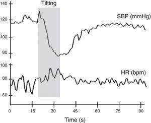 Normal heart rate and blood pressure responses to head-up tilt testing. In this test the subject lies on a tilt test table, which is then tilted upward at 60°-70° after a resting period of at least 5 min. Patients with different degrees of cardiovascular autonomic impairment may show delayed adaptation to the orthostatic challenge or may even be unable to adapt and have a syncopal event. HR: heart rate&#59; SBP: systolic blood pressure. Adapted from Ducla-Soares et al.73