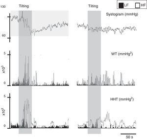 Signal processing of biological signals. Left: data from a normal subject&#59; right: data from a patient with paroxysmal atrial fibrillation. The same signal, the systogram obtained from systolic blood pressure, has been treated with wavelets (Db12) and the Hilbert-Huang transform. The differences in the autonomic output of the two individuals can be clearly distinguished. Note that this example is merely illustrative, as the tachogram obtained from the RR interval for both patients is not shown. HF: high frequency&#59; HHT: Hilbert-Huang transform&#59; LF: low frequency&#59; WT: wavelets.