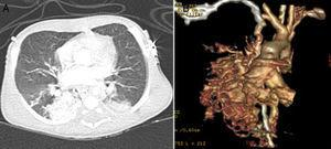 (A and B) Thoracic computed tomography scan showing a pulmonary arteriovenous malformation of the right lower lobe.
