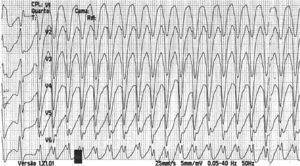 Rhythm strip recording monomorphic ventricular tachycardia with pattern of left bundle branch block and rate of around 300 bpm.