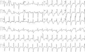 Twelve-lead electrocardiogram in sinus rhythm showing QRS with complete right bundle branch block, PR interval at the upper normal limit, and corrected QT of 405 ms.