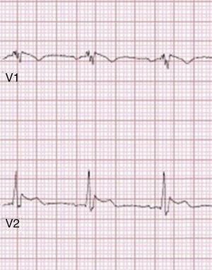 Type 1 Brugada phenocopy electrocardiogram in V1 and type 2 Brugada phenocopy ECG in V2, in the context of electrocution. Retrieved from Wang et al.85.