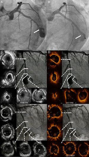 A) Angiographic comparison (spider view). Pre-treatment. The white arrow points out the aneurysm's neck area. B) Final angiographic result. C) Initial IVUS LCx imaging study. D) Initial OCT LCx imaging pullback. E) Final IVUS LCx imaging pullback. F) Final OCT LCx imaging pullback.