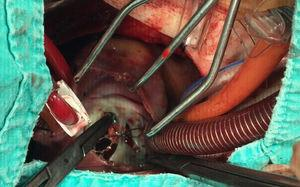 Intraoperative imaging showing that all margins of the occluder device were properly attached to the interatrial septum and there was no displacement.