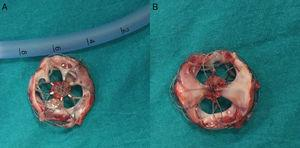 Imaging of the occluder device after surgical extraction from the front (A) and the back (B) sites.