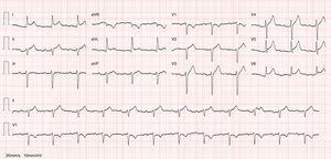 12-lead ECG: sinus rhythm with ST-segment elevation and indication of PR-segment depression.