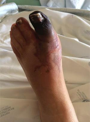 Bluish-black discoloration of the left hallux (in mummification process), second left toe and distal dorsal face of the foot.