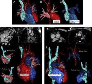 Normal heart (A-C). Chambers are color-coded&#59; systemic chambers are red and subpulmonary chambers are blue. Atria baffles are indicated in images D to F (1, systemic baffle. 2, subpulmonary baffle. Image F, anterior and posterior view of both atria. Note the right ventricle as systemic on the whole heart rendering). In arterial switching, the abnormal position of the great vessel can be seen in images G to I (*: pulmonary artery. **: aortic root. Image I, anterior position of pulmonary artery and a subpulmonary right ventricle. Upper right, anterior view of great vessels and below, a posterior view of the subpulmonary chambers. Note the right pulmonary branch narrowing (#) between the ascending aorta and the superior vena cava).