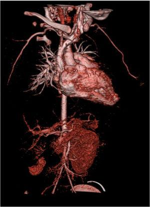 Computed tomography angiography showing vascularization only in the inferior pole of the right kidney.