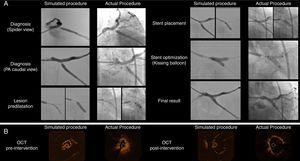 Side-by-side display of matched angiographic appearance (Panel A) and OCT imaging (Panel B) of patient-specific simulated procedure and actual procedure for comparative purposes. (Panel A) Angiographic images depicting the sequential procedural steps from diagnosis to final surgical result. (Panel B) OCT still frames of minimal luminal area before intervention and the final result after stent implantation.