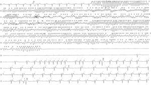Night-time Holter tracing documenting prolonged polymorphic ventricular tachycardia and ventricular fibrillation, followed by ventricular asystole and subsequent resumption of sinus rhythm.