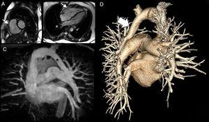 Magnetic resonance imaging, magnetic resonance angiography (MRA) and computed tomography angiography (CTA) images. A) Image of a small cardiac magnetic resonance imaging (CMRI) axis showing dilatation of the right ventricle (thin white arrow). B) Long-term CMRI showing dilatation of the right ventricle (thin white arrow). C) Maximum intensity projection in the anterior view of the coronal plane of the MRA, with the wings of the left upper lobe (LUL) and the apical segment of the left lower lobe (LLL) towards the venous trunk of a common vein (asterisk) for the left brachycephalic venous trunk. D) Rear view of the three-dimensional volume-rendering CTA images revealing a common vein for the LUL and the LLL of the left brachiocephalic venous trunk.