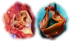 Solo bioprosthetic valve with structural valve deterioration (left)&#59; en bloc explantation of Solo valve (right).