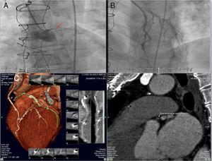 (A and B) Coronary angiogram showing chronic total occlusion of the left main coronary artery and critical left anterior descending lesion proximal to left internal mammary artery anastomosis&#59; (C) coronary computed tomography angiography showing a short (9 mm), hardly calcified chronic total occlusion lesion: in the middle of the occlusion 100% of the coronary lumen (186 Hounsfield units) was calcified and, in the distal part, 75% of the wall circumference (933 Hounsfield units) was calcified.