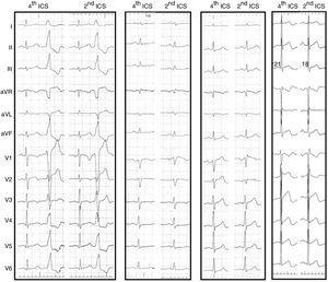 12-lead electrocardiogram (<span class=