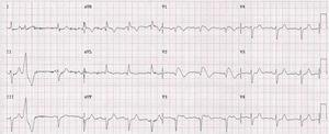 Electrocardiogram showing type 1 Brugada pattern.