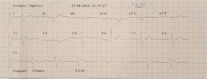 Electrocardiogram showing type 1 Brugada pattern after pharmacological provocation with ajmaline.