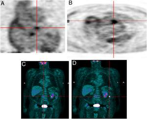 Infective endocarditis in a mechanical aortic valve in a 77-year-old male with a mechanical aortic valve, referred after two weeks of fever and back pain. He presented blood cultures positive for Streptococcus bovis. Transesophageal echocardiography and prospective ECG-gated cardiac CT results were negative for endocarditis. 18F-FDG P ET study revealed hypermetabolism in the aortic valve annulus (SUVmax 2.8) (A and B) and in the lumbar column at L3-L4 level (SUVmax 6.3) (C), and radiopharmaceutical uptake is visible in the descending colon at the splenic angle (SUVmax 7.9) (D). A colonoscopy with biopsy was performed, resulting in the detection of adenocarcinoma of the colon.