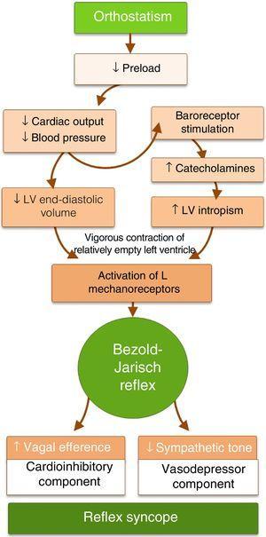 Pathophysiology of the Bezold–Jarisch reflex as a mechanism of reflex syncope. LV: left ventricular.
