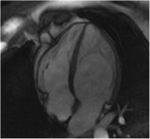 Left ventricular noncompaction in a Fabry disease patient: cardiac magnetic resonance imaging showing hypertrabeculation mostly affecting the left ventricular apical region and lateral wall in apical 4-chamber view.