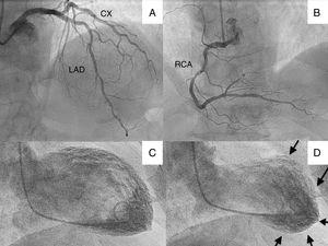 (A) Cranial projection showing left anterior descending (LAD) and circumflex (CX) arteries without significant lesions; (B) cranial projection showing right coronary artery (RCA) without significant lesions; (C) ventriculography with left ventricle in end-diastole; (D) ventriculography showing left ventricle in end-systole, with apical akinesia (arrows).