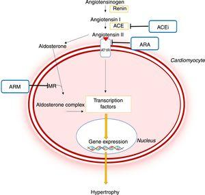Importance of the renin-angiotensin-aldosterone system in the pathophysiology of hypertrophic cardiomyopathy and mechanism of action of different pharmacological inhibitors of this system.44,45 ACE: angiotensin-converting enzyme; ACEi: angiotensin-converting enzyme inhibitor; ARB: angiotensin receptor blocker; AT1R: angiotensin II receptor type I; CaMKII: Ca2+/calmodulin-dependent protein kinase II; JAK: Janus kinase; MEF2: myocyte enhancer factor 2; MRA: mineralocorticoid receptor antagonist; NF-κB: nuclear factor kappa B; MR: mineralocorticoid receptor; STAT: signal transducer and activator of transcription.
