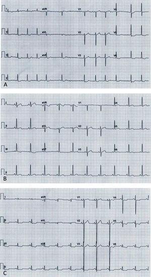 Electrocardiograms: (A, Case 1): atrial fibrillation, ST-segment depression and biphasic T-waves in V4-V6, III and aVF; (B, Case 2): sinus rhythm, short PR interval, T-wave inversion in III, flat T-wave in aVF, biphasic T-wave in II, V4-V6; (C, Case 3): sinus rhythm, short PR interval, electrocardiographic criteria for left ventricular hypertrophy, ST-segment depression and T-wave inversion in V4-V6, II, III and aVF.