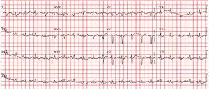 Electrocardiogram upon admission to the emergency room demonstrating sinus tachycardia, right axis deviation, incomplete right bundle branch block and T wave inversion in lead 3.