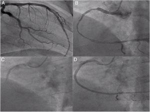 Second angiography and angioplasty on day 2 of hospitalization: (A) left coronary artery confirming good outcome; (B) right coronary angiography showing diffuse right coronary artery disease from the proximal segment to the crux, with distal dissection; (C) implantation of the last stent, 3.5 mm×38 mm Resolute Onyx; (D) final result of the second right coronary angioplasty.
