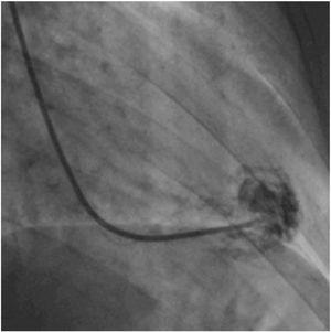 Contrast injection into the left ventricle after guide catheter placement.