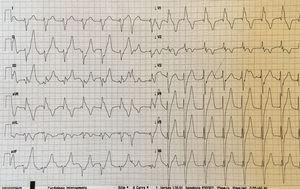 Electrocardiogram showing a paced right bundle branch block pattern.