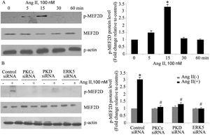 The PKCɛ/PKD/ERK5 pathway is involved in angiotensin II (Ang II)-induced MEF2D activation. (A) Cardiomyocytes were stimulated with Ang II for different times (0-60 min). Phosphorylated MEF2D protein levels were examined using Western blotting and normalized to the total levels of MEF2D. Data are shown as the mean ± standard error of the mean of four separate experiments. *p<0.05 vs. control without Ang II stimulation; (B) cardiomyocytes were treated without or with Ang II (100 nM) and in the absence or presence of PKCɛ, PKD or ERK5 small interfering RNA (siRNA). *p<0.05 vs. control siRNA+ Ang II(-); #p<0.05 vs. control siRNA+Ang II(+).