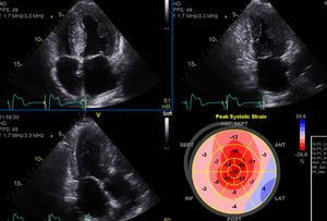 Revaluation echocardiogram with moderate left ventricular concentric hypertrophy and preserved ejection fraction.