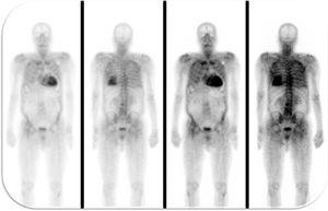 99mTc-DPD scintigraphy revealed significant myocardial tracer uptake, diagnosing TTR amyloid infiltration.