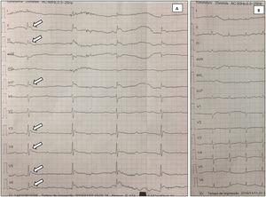 (A) Initial electrocardiogram: Osborn waves (arrows), complete atrioventricular block and tremor artifact; (B) electrocardiogram after patient warming: resolution of previous abnormalities.