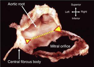 Dissection showing how part of the annulus is formed by the region of fibrous continuity with the leaflets of the aortic valve (dotted yellow line). The ends of this area of continuity (triangles) are the fibrous trigones that anchor the valve complex to the roof of the left ventricle. The right trigone merges with the membranous septum to form the central fibrous body (from 10).
