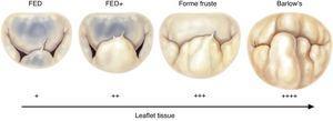 Spectrum of degenerative mitral valve disease (from 19). FED: fibroelastic deficiency.