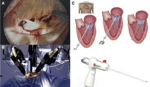 Minimally invasive mitral valve procedures. (A) Endoscopic view from a right minithoracotomy, showing ruptured chordae of P2 segment; (B) Da Vinci robot; (C) surgical steps of chordal implantation with the Harpoon device (left anterior minithoracotomy in beating heart without extracorporeal circulation72).