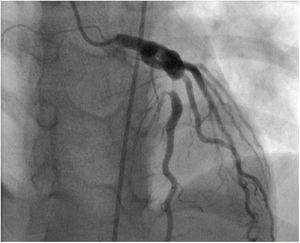 Coronary angiography showing coronary artery aneurysm of the anterior descending coronary artery measuring 17 mm×7 mm and involving the first diagonal branch, associated with 90% post-aneurysmal stenosis.